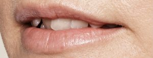 008_Lips_After