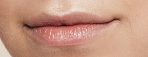 016_Lips_Before