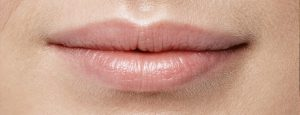017_Lips_Before