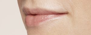 019_Lips_After