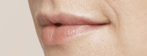 019_Lips_Before