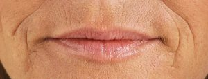 EA1_3451_Lips_Before