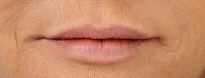EA2_7400_Lips_After
