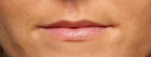 EE1_2889_Lips_Profile_Before