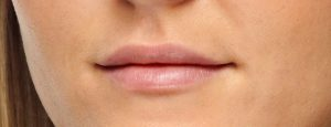 EE2_7682_Lips_Profile_After